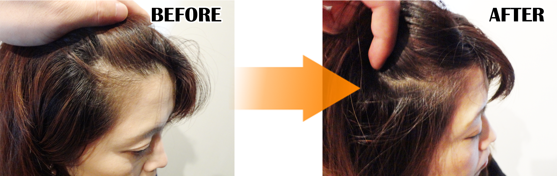 半年 髪 禁煙